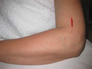 One of the acupuncture points for tennis elbow