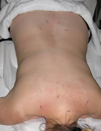 Acupuncture for low back pain and base of neck pain