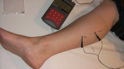 Electro Acupuncture for pain after leg cramp in the right leg